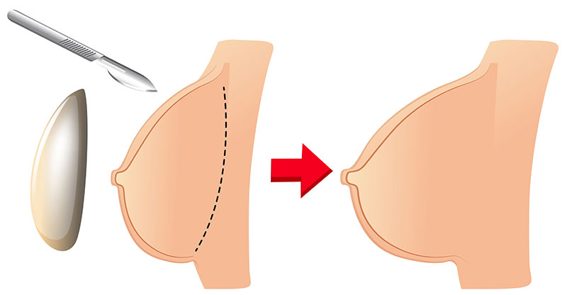 Breast Surgery Treatment in Pune