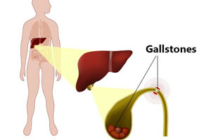 Gallstone & Gallbladder stone removal surgery in Pune