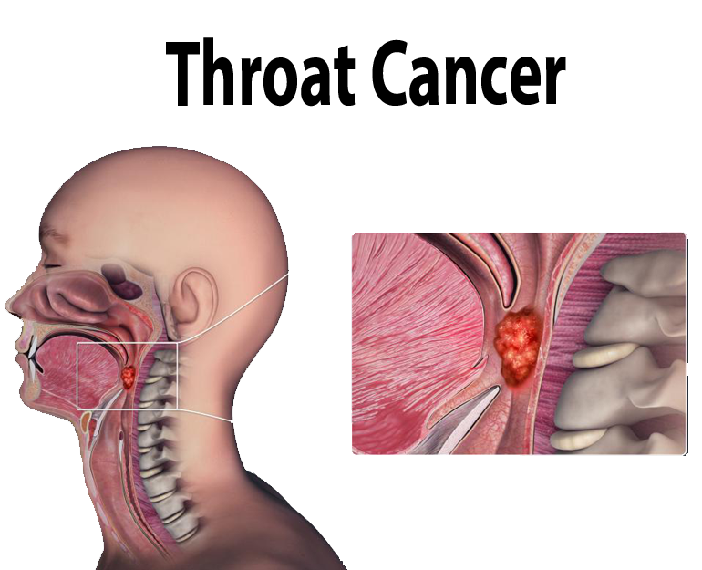 Throat Cancer Treatment in Pune