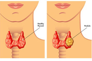 Best Thyroid Teatment in Pune
