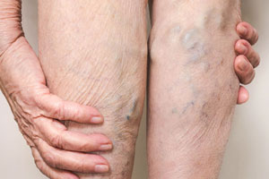 Best Varicose Veins laser Treatment at Ultra Care Clinic, Pune