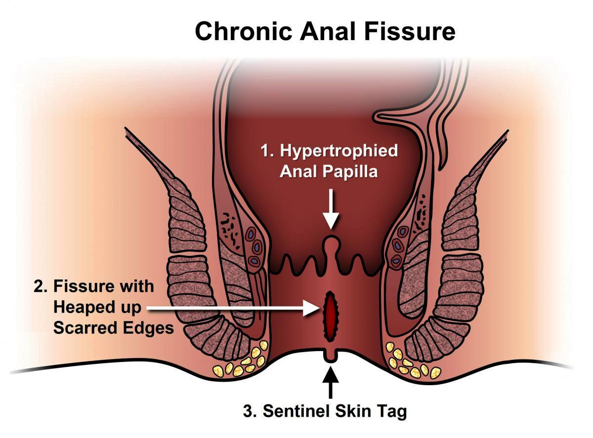 Fissure Treatment & Laser Surgery For Anal Fissure with Cost in Pune By Dr. Abhijit Gotkhinde