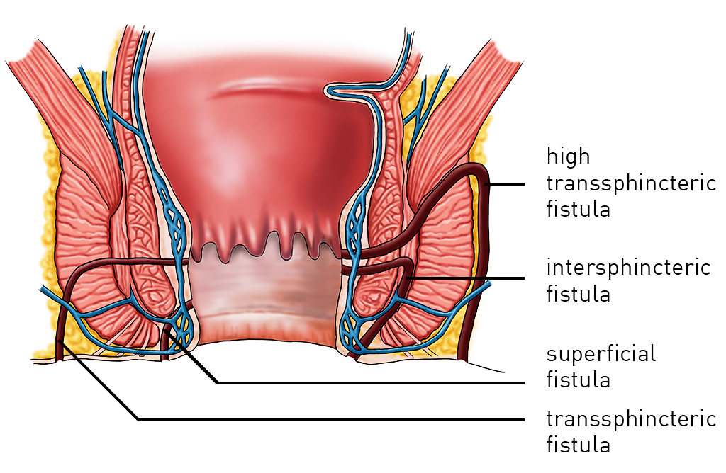 Best Fistula & Laser Surgery Treatment in Pune