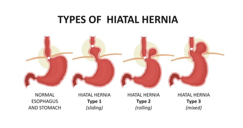 Hiatal Hernia Surgery in Pune