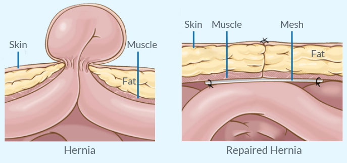 Umbilical Hernia Repair Treatment in Pune